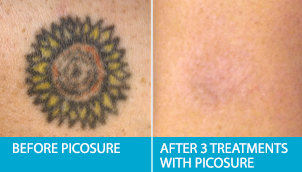 Post Treatment Tattoo Removal WIth Laser. Picosure Edmonton Laser Clinic.